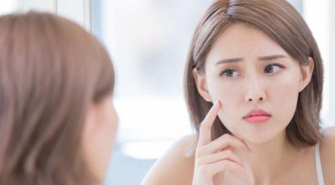 Need help with managing your acne breakouts? We speak to an expert for some simple tips.