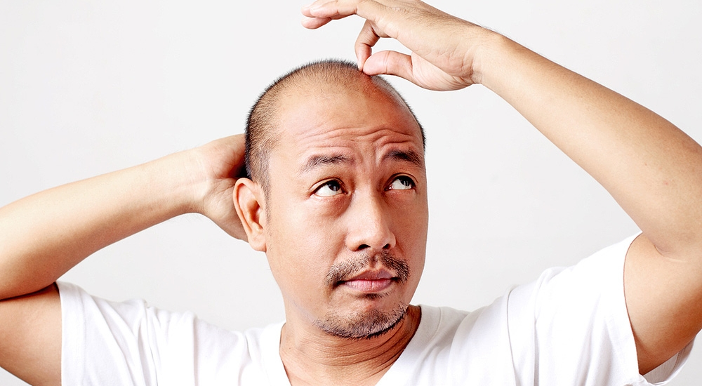 Learn how to prevent hair loss